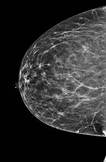 category a dense breast ultrasound