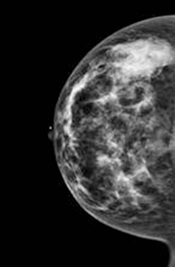 category c dense breast ultrasound