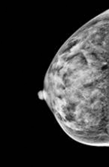 category d dense breast ultrasound